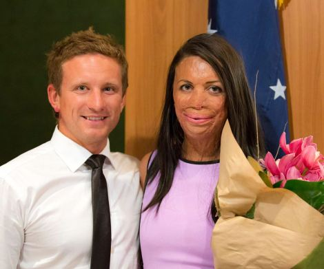 1437533177529_Turia-Pitt-and-Michael-Hoskin-Love-Story-in-Pictures-1